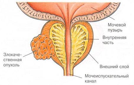 Проблемы предстательной железы