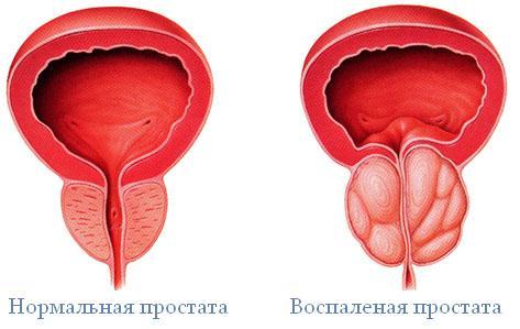 Таблетки цинка от простатита