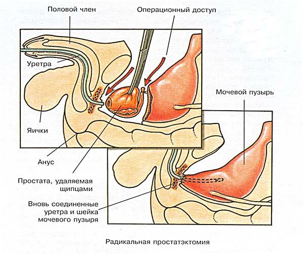 Радиоизотопное лечение рака простаты