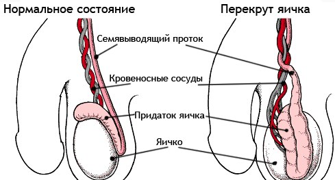 Как сдавать кровь из вены натощак или нет
