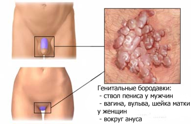 ВПЧ 16 типа у женщин: способы лечения
