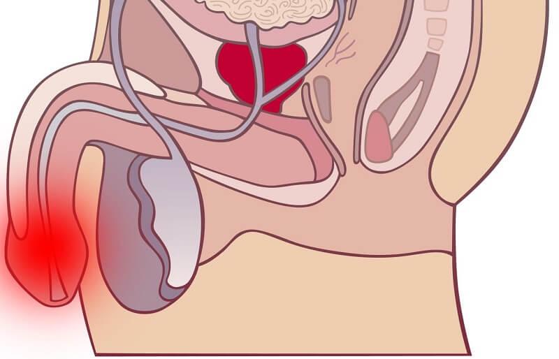 Простатит и кандидоза у при хроническом простатите флексид